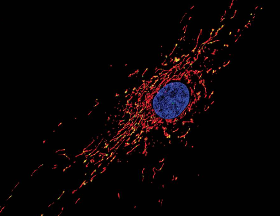 Mitochondrial network, MitoTracker Red-stained, Photo: Amanda Bess (Meyer et al., Tox. Sci., 2013, 134(1): 1-17)