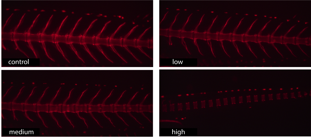Skeletal structure of medaka (Japanese rice fish) exposed to low, medium, and high concentrations of a flame retardant compound. All images were taken on day 22 of development. From Schkoda unpublished research